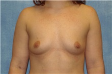 Breast Augmentation Before Photo by George John Alexander, MD, FACS; Las Vegas, NV - Case 32332