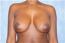 Breast Augmentation After Photo by George John Alexander, MD, FACS; Las Vegas, NV - Case 32336