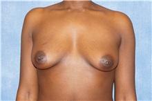 Breast Augmentation Before Photo by George John Alexander, MD, FACS; Las Vegas, NV - Case 32336