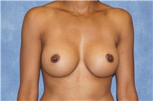 Breast Augmentation After Photo by George John Alexander, MD, FACS; Las Vegas, NV - Case 32337