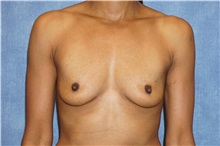 Breast Augmentation Before Photo by George John Alexander, MD, FACS; Las Vegas, NV - Case 32337