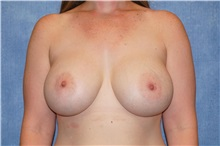 Breast Augmentation After Photo by George John Alexander, MD, FACS; Las Vegas, NV - Case 32339