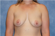Breast Augmentation Before Photo by George John Alexander, MD, FACS; Las Vegas, NV - Case 32339