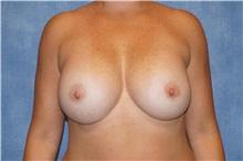 Breast Augmentation After Photo by George John Alexander, MD, FACS; Las Vegas, NV - Case 32340