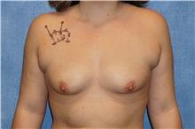 Breast Augmentation Before Photo by George John Alexander, MD, FACS; Las Vegas, NV - Case 32341