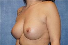 Breast Augmentation After Photo by George John Alexander, MD, FACS; Las Vegas, NV - Case 32341