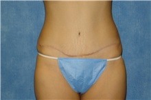 Tummy Tuck After Photo by George John Alexander, MD, FACS; Las Vegas, NV - Case 32344