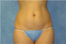 Tummy Tuck Before Photo by George John Alexander, MD, FACS; Las Vegas, NV - Case 32344
