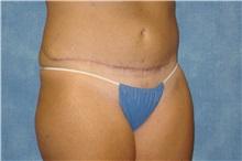 Tummy Tuck After Photo by George John Alexander, MD, FACS; Las Vegas, NV - Case 32347