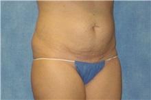 Tummy Tuck Before Photo by George John Alexander, MD, FACS; Las Vegas, NV - Case 32347
