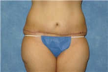 Tummy Tuck After Photo by George John Alexander, MD, FACS; Las Vegas, NV - Case 32348