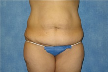 Tummy Tuck Before Photo by George John Alexander, MD, FACS; Las Vegas, NV - Case 32348