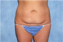 Tummy Tuck Before Photo by George John Alexander, MD, FACS; Las Vegas, NV - Case 32609
