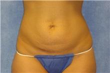 Tummy Tuck Before Photo by George John Alexander, MD, FACS; Las Vegas, NV - Case 32637