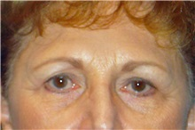 Brow Lift Before Photo by George John Alexander, MD, FACS; Las Vegas, NV - Case 32643