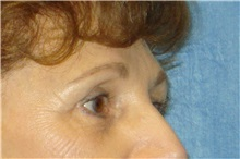 Brow Lift After Photo by George John Alexander, MD, FACS; Las Vegas, NV - Case 32643