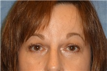 Brow Lift After Photo by George John Alexander, MD, FACS; Las Vegas, NV - Case 32647
