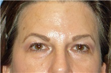 Brow Lift Before Photo by George John Alexander, MD, FACS; Las Vegas, NV - Case 32647