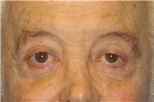Eyelid Surgery After Photo by George John Alexander, MD, FACS; Las Vegas, NV - Case 32651