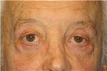 Eyelid Surgery Before Photo by George John Alexander, MD, FACS; Las Vegas, NV - Case 32651