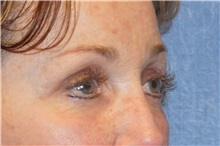 Brow Lift After Photo by George John Alexander, MD, FACS; Las Vegas, NV - Case 32654