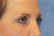 Brow Lift Before Photo by George John Alexander, MD, FACS; Las Vegas, NV - Case 32654