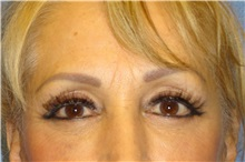 Brow Lift After Photo by George John Alexander, MD, FACS; Las Vegas, NV - Case 32719
