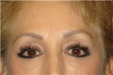 Brow Lift Before Photo by George John Alexander, MD, FACS; Las Vegas, NV - Case 32719