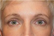 Eyelid Surgery After Photo by George John Alexander, MD, FACS; Las Vegas, NV - Case 32721