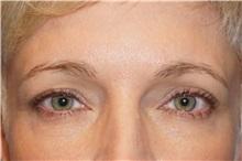Eyelid Surgery Before Photo by George John Alexander, MD, FACS; Las Vegas, NV - Case 32721