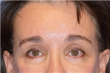 Brow Lift After Photo by George John Alexander, MD, FACS; Las Vegas, NV - Case 32724