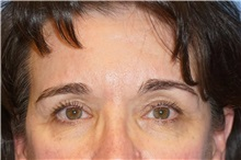 Brow Lift Before Photo by George John Alexander, MD, FACS; Las Vegas, NV - Case 32724
