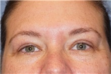 Eyelid Surgery After Photo by George John Alexander, MD, FACS; Las Vegas, NV - Case 32725