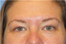 Eyelid Surgery Before Photo by George John Alexander, MD, FACS; Las Vegas, NV - Case 32725