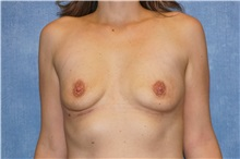 Breast Implant Removal After Photo by George John Alexander, MD, FACS; Las Vegas, NV - Case 32737