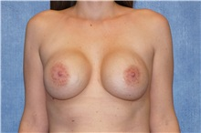 Breast Implant Removal Before Photo by George John Alexander, MD, FACS; Las Vegas, NV - Case 32737