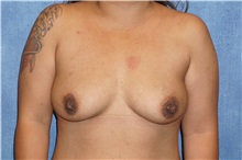 Breast Implant Removal After Photo by George John Alexander, MD, FACS; Las Vegas, NV - Case 32739