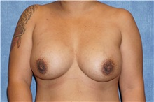 Breast Implant Removal Before Photo by George John Alexander, MD, FACS; Las Vegas, NV - Case 32739