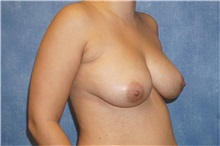Breast Implant Removal After Photo by George John Alexander, MD, FACS; Las Vegas, NV - Case 32740