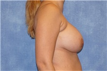 Breast Implant Removal Before Photo by George John Alexander, MD, FACS; Las Vegas, NV - Case 32740