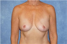 Breast Implant Removal After Photo by George John Alexander, MD, FACS; Las Vegas, NV - Case 32742