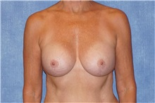 Breast Implant Removal Before Photo by George John Alexander, MD, FACS; Las Vegas, NV - Case 32742