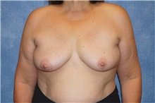 Breast Implant Removal After Photo by George John Alexander, MD, FACS; Las Vegas, NV - Case 32743