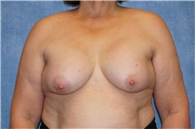 Breast Implant Removal Before Photo by George John Alexander, MD, FACS; Las Vegas, NV - Case 32743