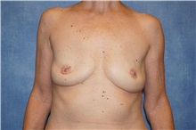 Breast Implant Removal After Photo by George John Alexander, MD, FACS; Las Vegas, NV - Case 32744