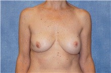 Breast Implant Removal Before Photo by George John Alexander, MD, FACS; Las Vegas, NV - Case 32744