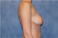 Breast Implant Removal After Photo by George John Alexander, MD, FACS; Las Vegas, NV - Case 32746