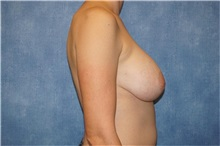 Breast Implant Removal Before Photo by George John Alexander, MD, FACS; Las Vegas, NV - Case 32746