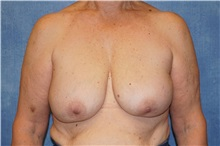 Breast Implant Removal After Photo by George John Alexander, MD, FACS; Las Vegas, NV - Case 32747