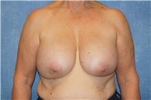 Breast Implant Removal Before Photo by George John Alexander, MD, FACS; Las Vegas, NV - Case 32747